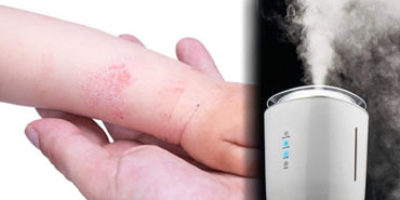 Humidifier for Eczema featured image